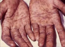 фото сифилис первичный